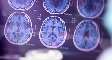 Araştırmacılar nörodejeneratif hastalıkları teşhis etmek için yeni bir metot geliştirdiler
