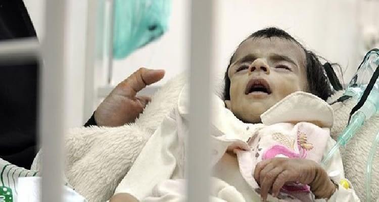 Teşhisi konulamayan bir hastalık nedeniyle çocuklar ölüme sürükleniyor! Can kaybı 165